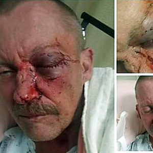 Danny Mayberry lies in a Tennessee hospital bed in early Feburary after his family says he was beaten by a Cherokee County, NC, sheriff's deputy. His sister, Georgia Tanner, posted these images to social media.